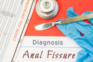 Anal fissure