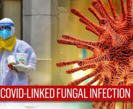 Back fungal infection in Covid Patients